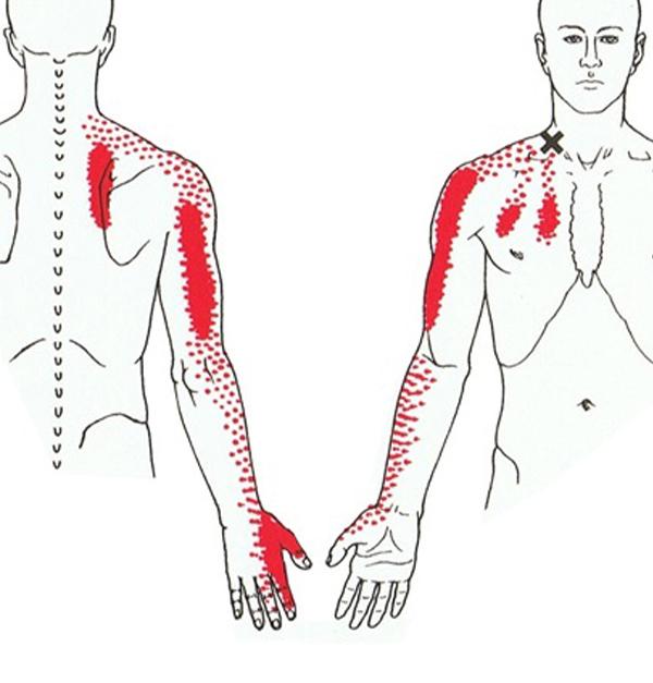 Arm Hand Vingers Oefentherapie Eindhoven